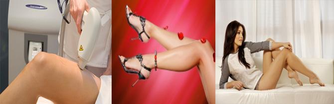 kupon, kedvezmény, szépség, SHR, Teljes láb szőrtelenítés
